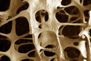 Marcadores de remodelado óseo