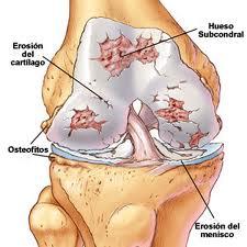 Artrosis rodilla 1