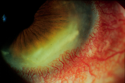 Intense corneal inflammatio